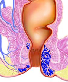 Grad 4: Hæmoriderne hænger altid udenfor endetarmsåbningen, kan ikke skubbes ind, og der kan komme sår på.